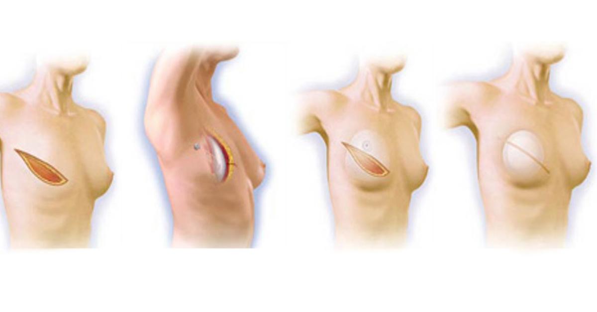 Αποκατάσταση μαστου
