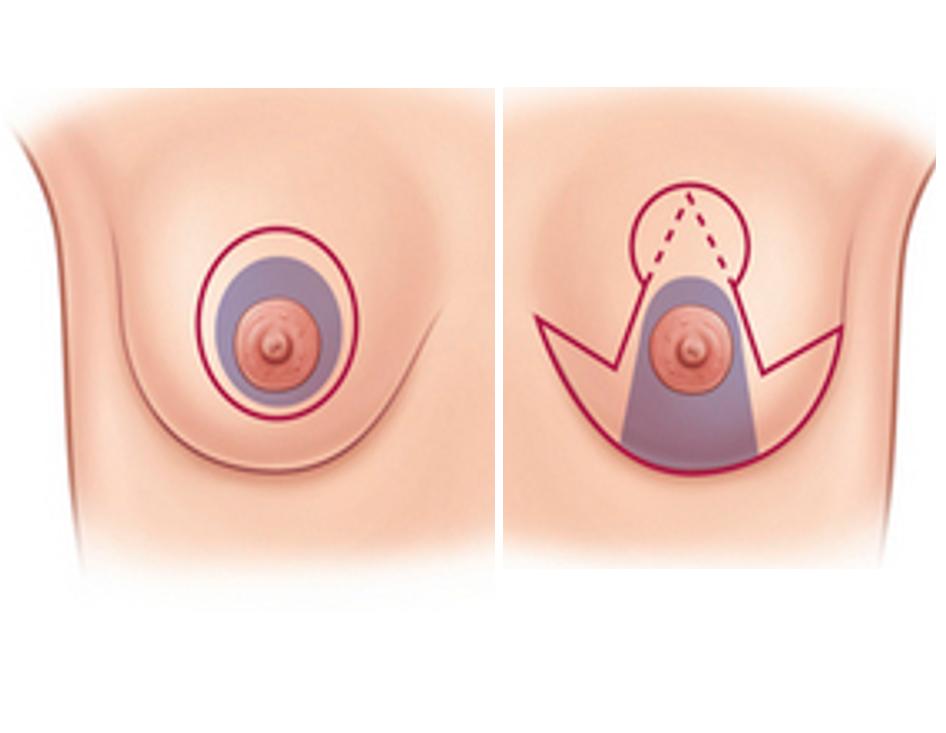 ογκοπλαστική χειρουργική μαστού