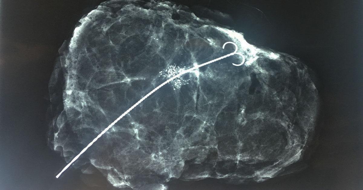 Βιοψία Μαστού