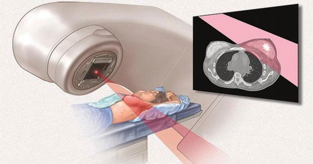 Ακτινοθεραπεία μαστού